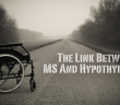 Multiple-Sclerosis-and-Hypothyroidism