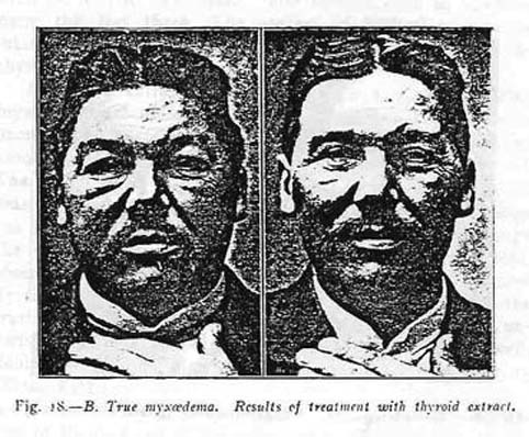 Hypothyroidism Before and After's