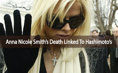 Low-Thyroid-Hashimoto's-And-Anna-Nicole-Smith's-Death