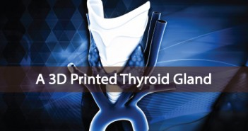 A-3D-Printed-Thyroid-Gland-Announced-In-Russia-First-Ever