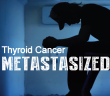 """The-""""M""""-Word-Thyroid-Cancer-Metastasized-To-Lungs"""