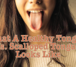 The-Scalloped-Tongue-The-Thyroid-And-Deficiencies