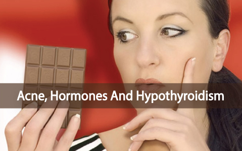 Cystic-Hormonal-Acne-Caused-By-Your-Low-Thyroid